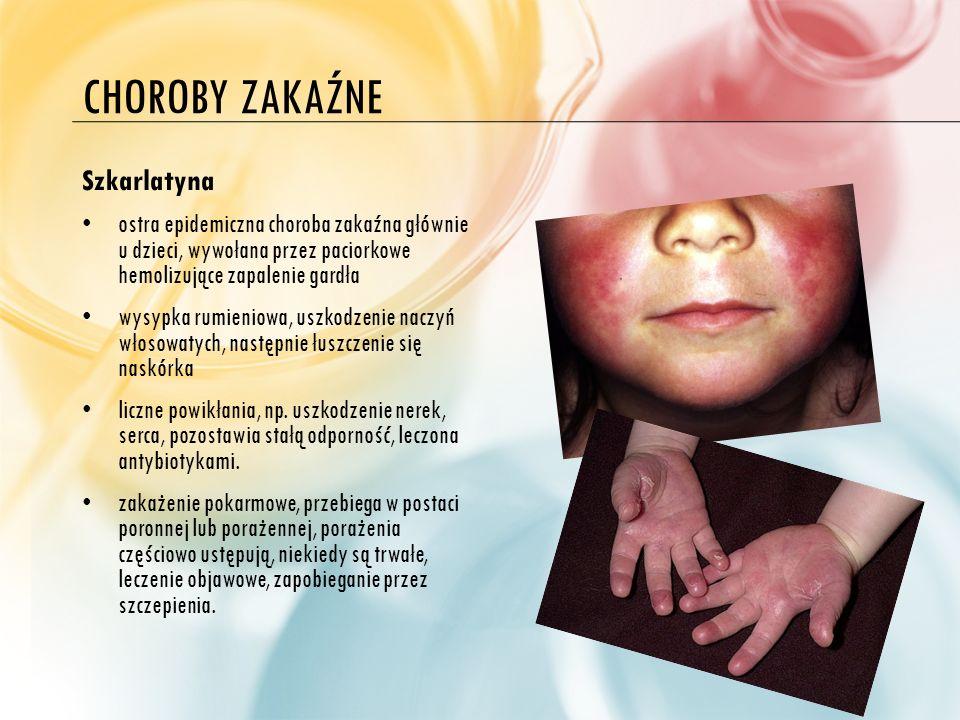 Choroby zakaźne Szkarlatyna