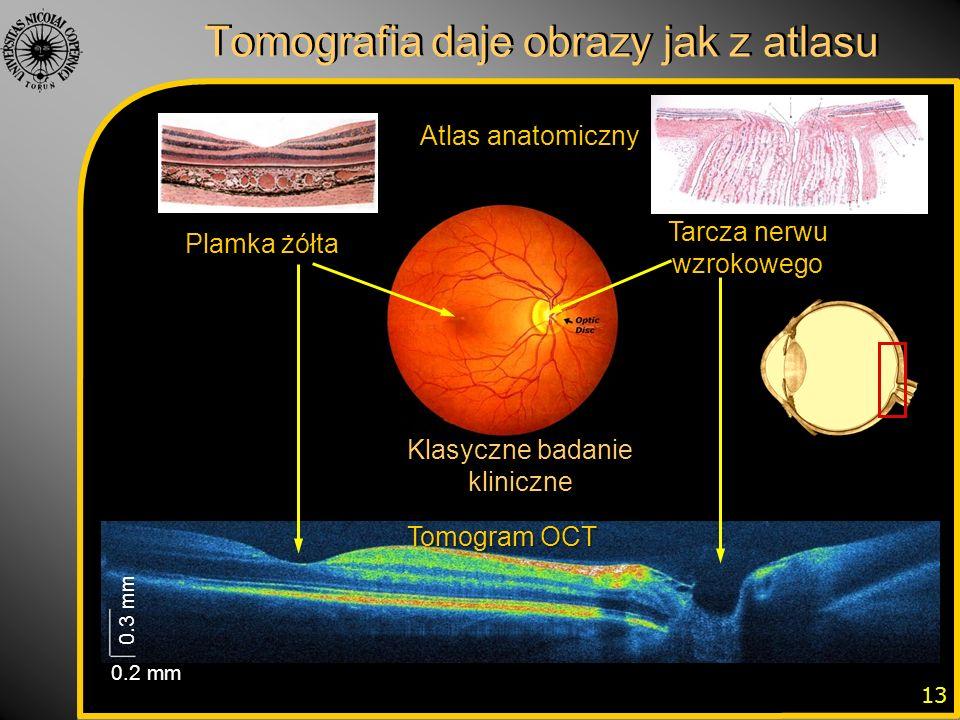 Tomografia daje obrazy jak z atlasu