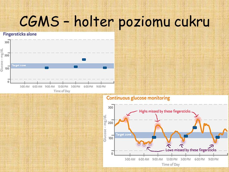 CGMS – holter poziomu cukru