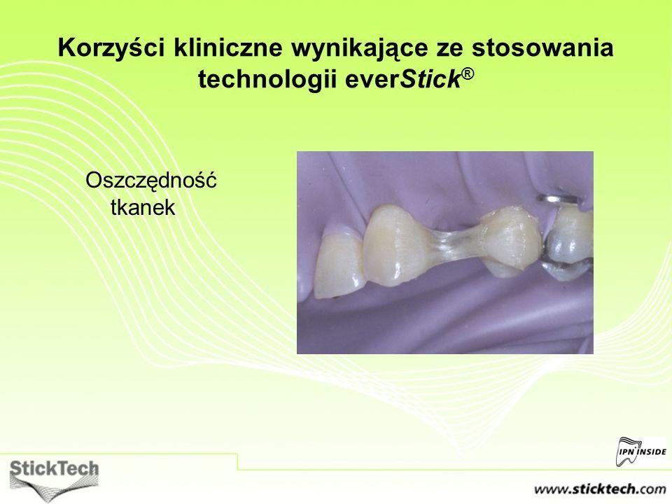 Korzyści kliniczne wynikające ze stosowania technologii everStick®