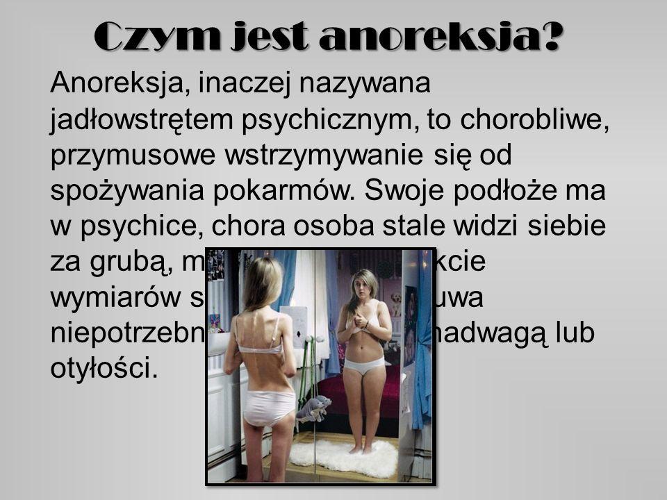Czym jest anoreksja