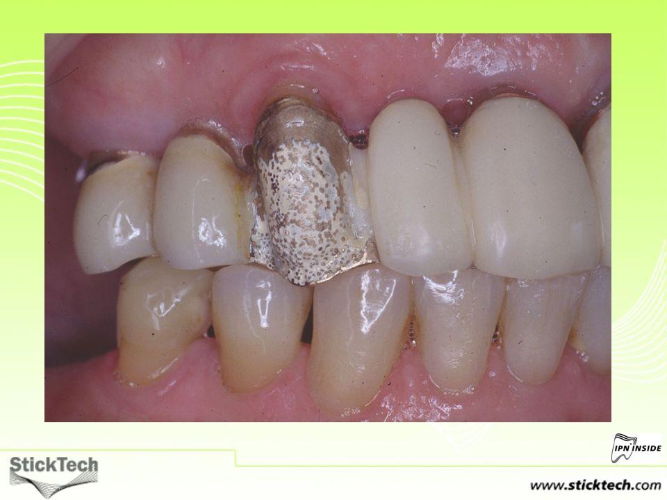 60-letnia pacjentka zgłosiła się do gabinetu stomatologicznego z odcementowaną licówką kompozytową osadzoną na protezie stałej wykonanej ze stopu złota.