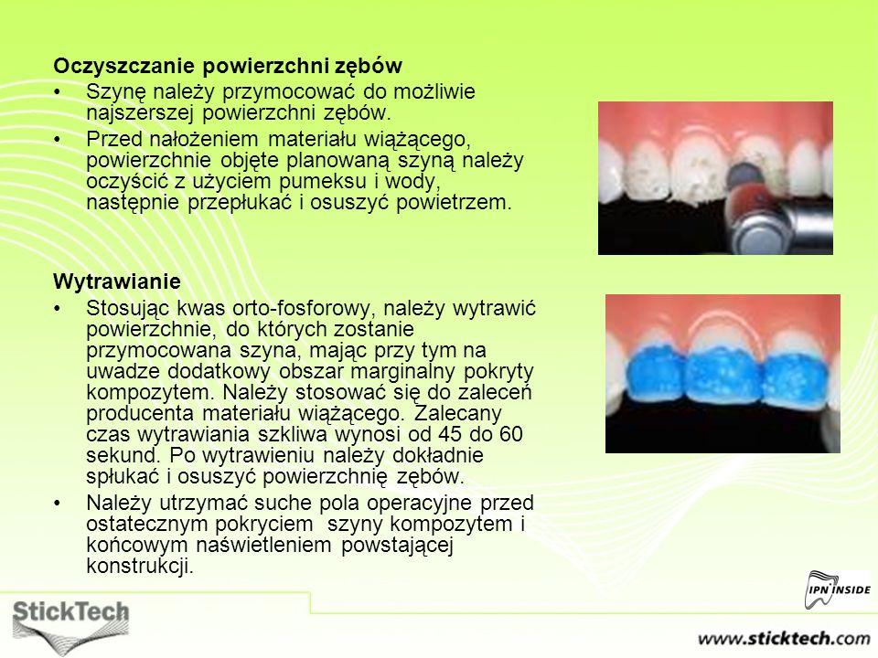 Oczyszczanie powierzchni zębów