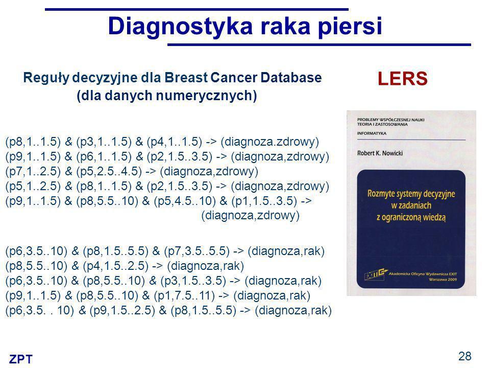 Diagnostyka raka piersi (dla danych numerycznych)