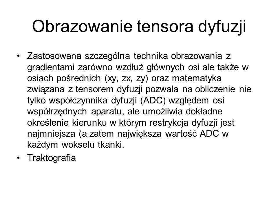Obrazowanie tensora dyfuzji