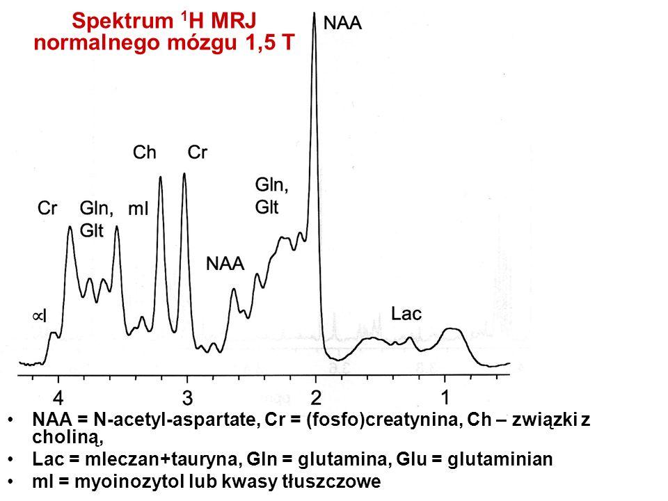 Spektrum 1H MRJ normalnego mózgu 1,5 T