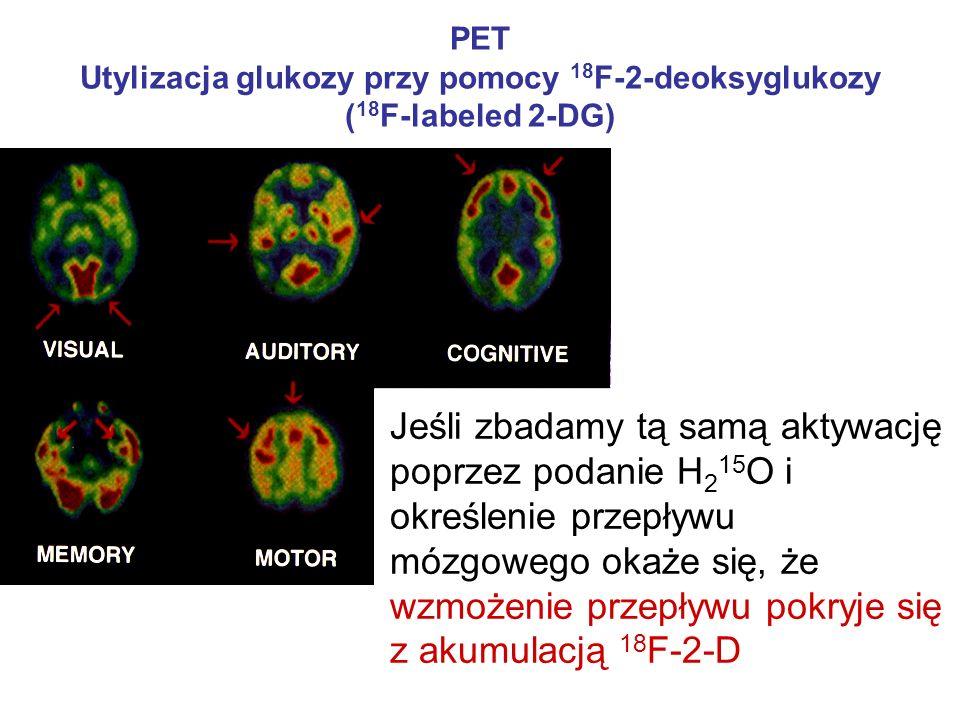 PET Utylizacja glukozy przy pomocy 18F-2-deoksyglukozy (18F-labeled 2-DG)