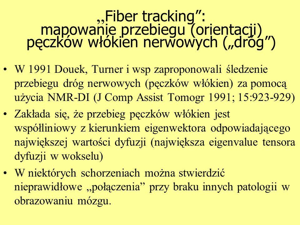 """""""Fiber tracking : mapowanie przebiegu (orientacji) pęczków włókien nerwowych (""""dróg )"""