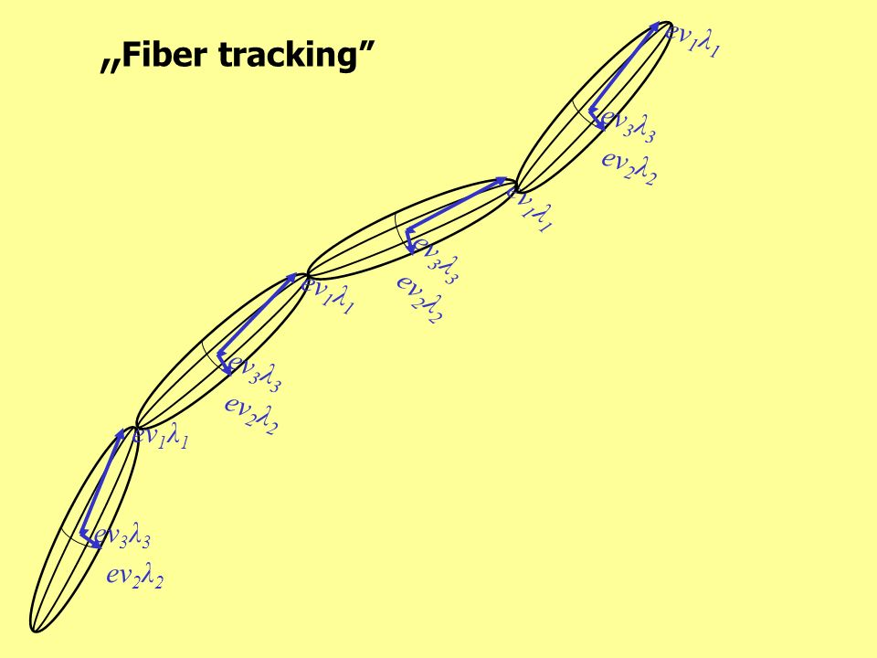 """Fiber tracking ev1λ1 ev3λ3 ev2λ2 ev1λ1 ev3λ3 ev1λ1 ev2λ2 ev3λ3 ev2λ2"