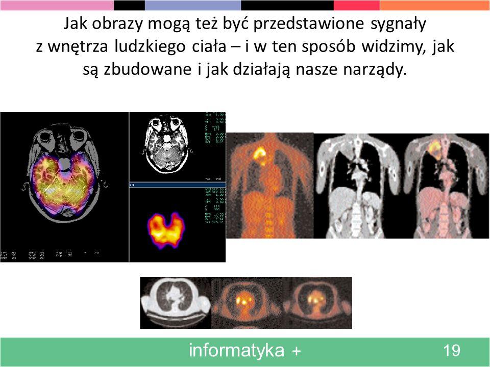 Jak obrazy mogą też być przedstawione sygnały z wnętrza ludzkiego ciała – i w ten sposób widzimy, jak są zbudowane i jak działają nasze narządy.
