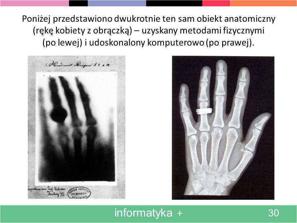 Poniżej przedstawiono dwukrotnie ten sam obiekt anatomiczny (rękę kobiety z obrączką) – uzyskany metodami fizycznymi (po lewej) i udoskonalony komputerowo (po prawej).