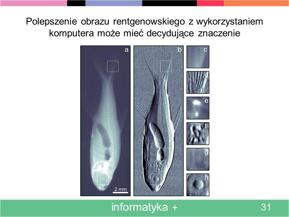 Polepszenie obrazu rentgenowskiego z wykorzystaniem komputera może mieć decydujące znaczenie