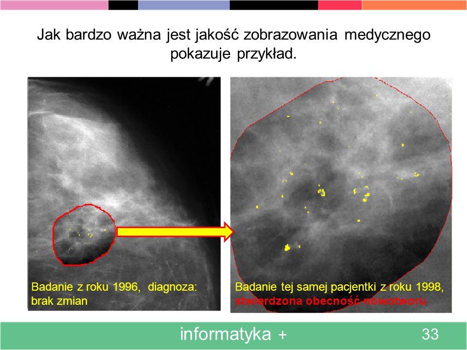 Jak bardzo ważna jest jakość zobrazowania medycznego pokazuje przykład.