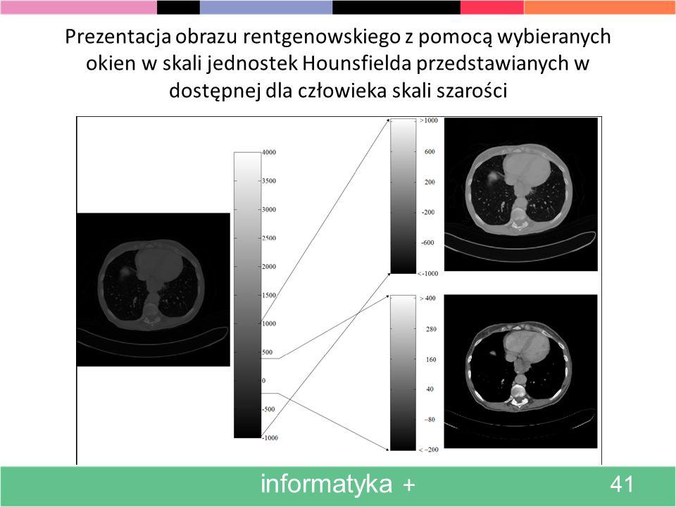 Prezentacja obrazu rentgenowskiego z pomocą wybieranych okien w skali jednostek Hounsfielda przedstawianych w dostępnej dla człowieka skali szarości