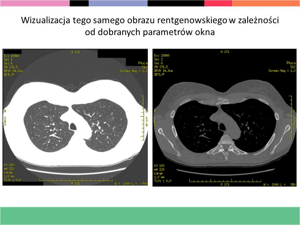 Wizualizacja tego samego obrazu rentgenowskiego w zależności od dobranych parametrów okna