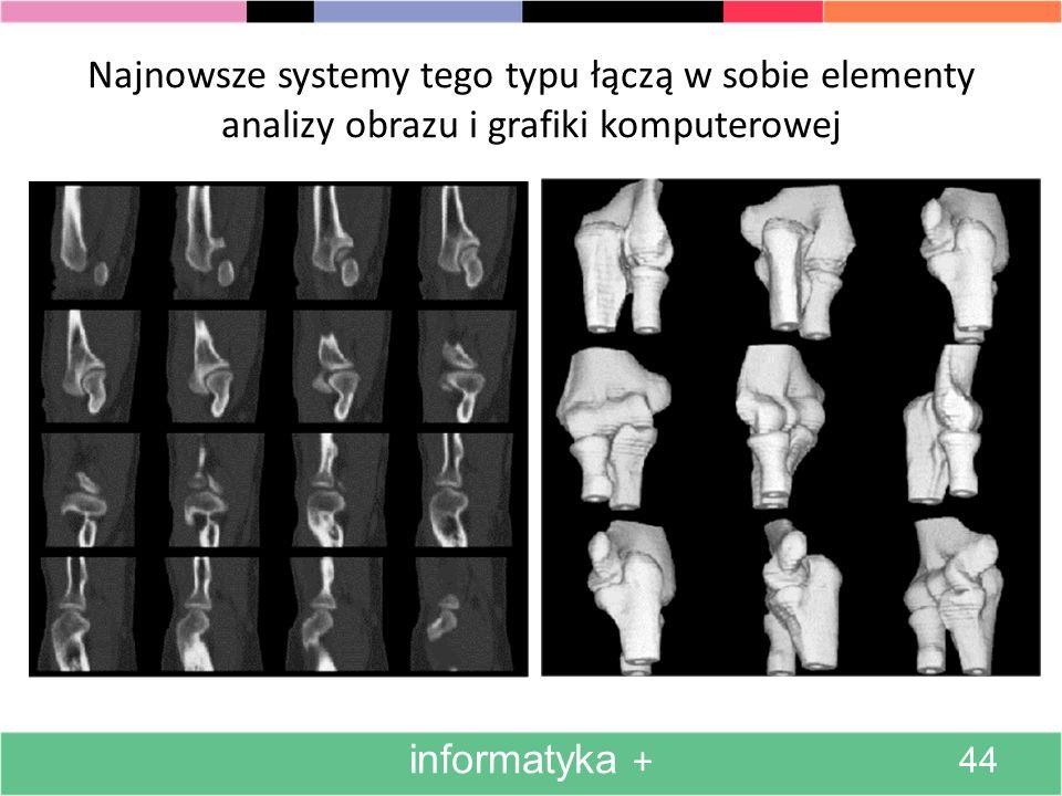 Najnowsze systemy tego typu łączą w sobie elementy analizy obrazu i grafiki komputerowej