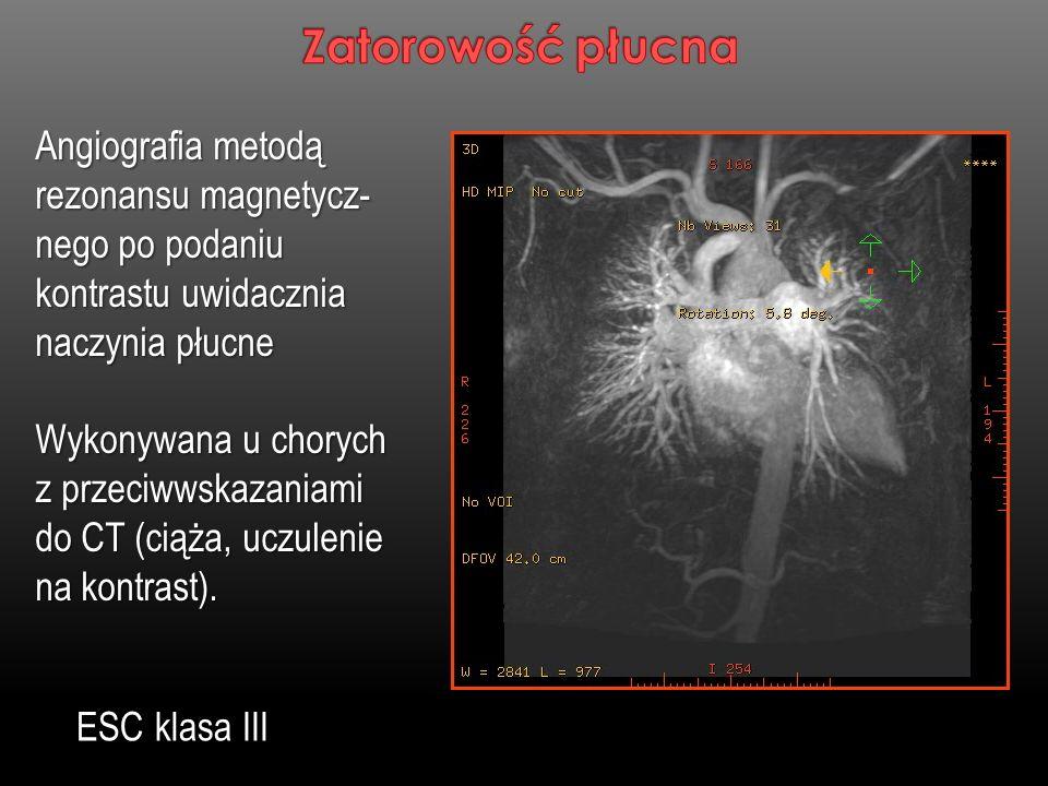 Zatorowość płucnaAngiografia metodą rezonansu magnetycz-nego po podaniu kontrastu uwidacznia naczynia płucne.