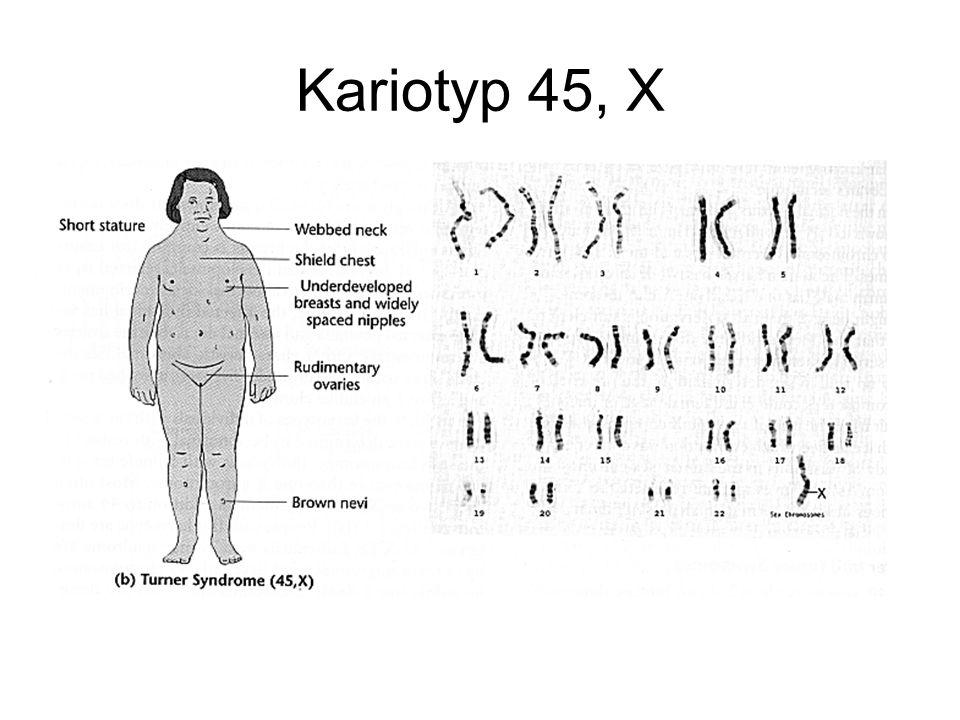 Kariotyp 45, X