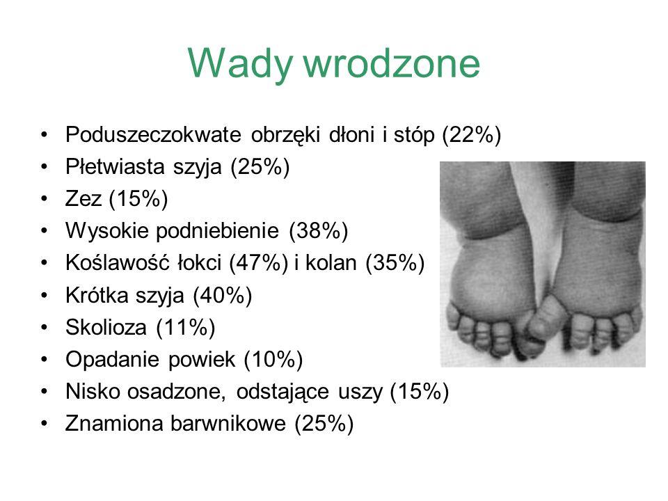 Wady wrodzone Poduszeczokwate obrzęki dłoni i stóp (22%)