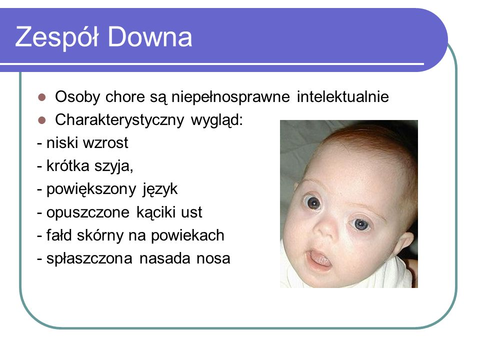 Zespół Downa Osoby chore są niepełnosprawne intelektualnie