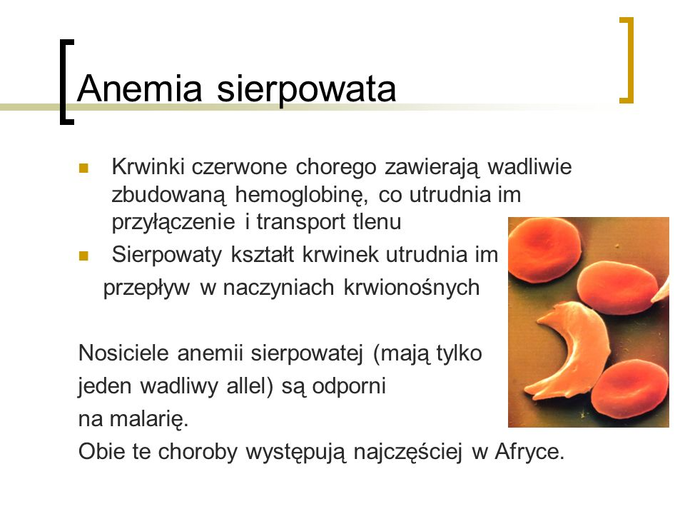 Anemia sierpowata Krwinki czerwone chorego zawierają wadliwie zbudowaną hemoglobinę, co utrudnia im przyłączenie i transport tlenu.