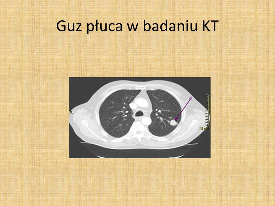 Guz płuca w badaniu KT