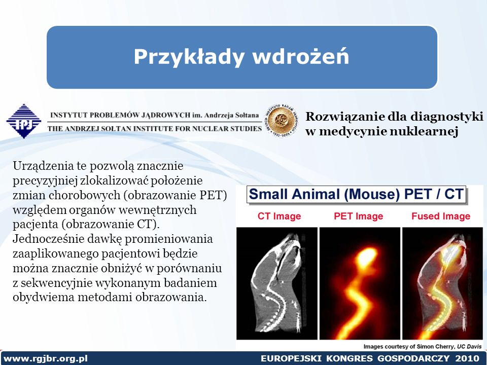 Przykłady wdrożeń Rozwiązanie dla diagnostyki w medycynie nuklearnej