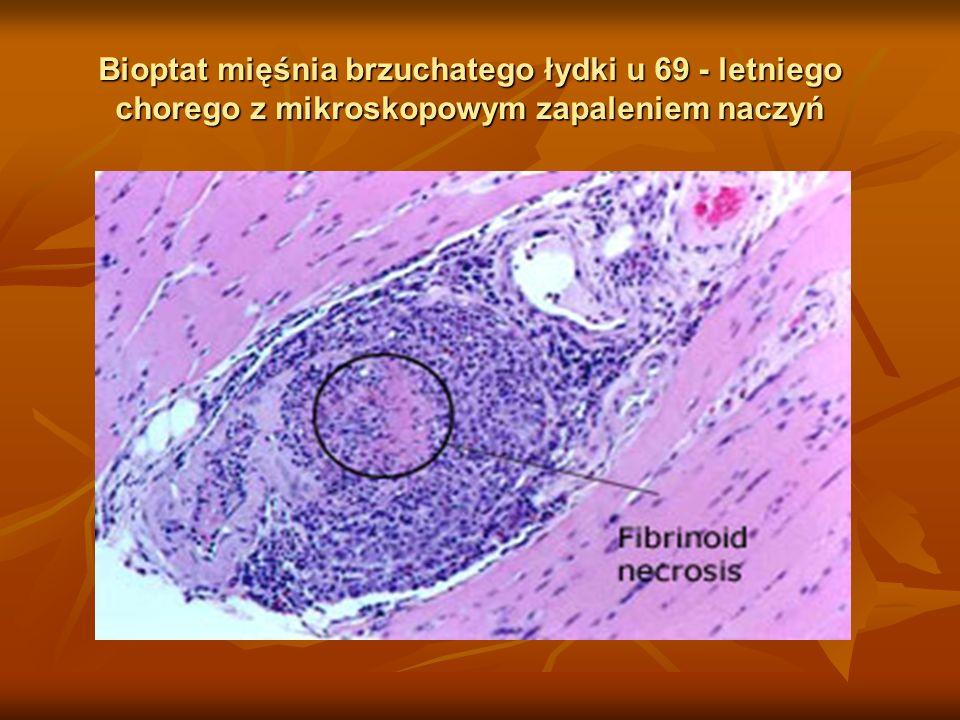 Bioptat mięśnia brzuchatego łydki u 69 - letniego chorego z mikroskopowym zapaleniem naczyń