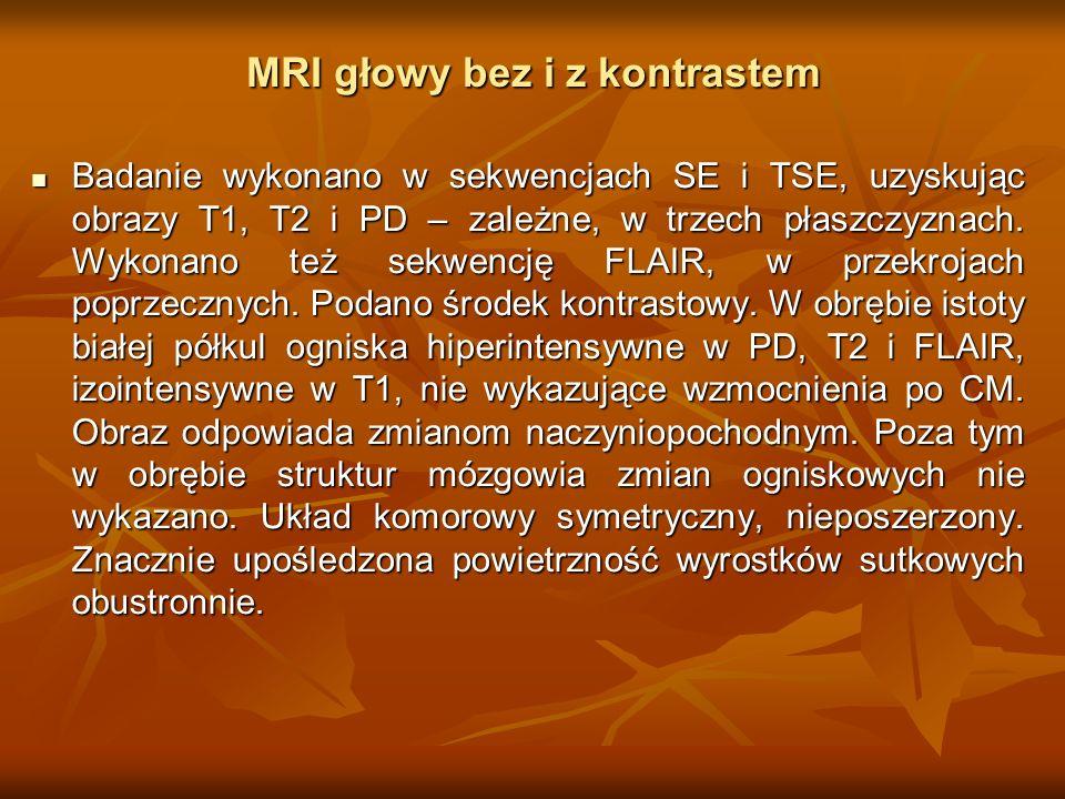 MRI głowy bez i z kontrastem