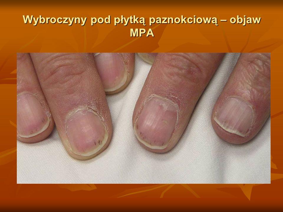 Wybroczyny pod płytką paznokciową – objaw MPA