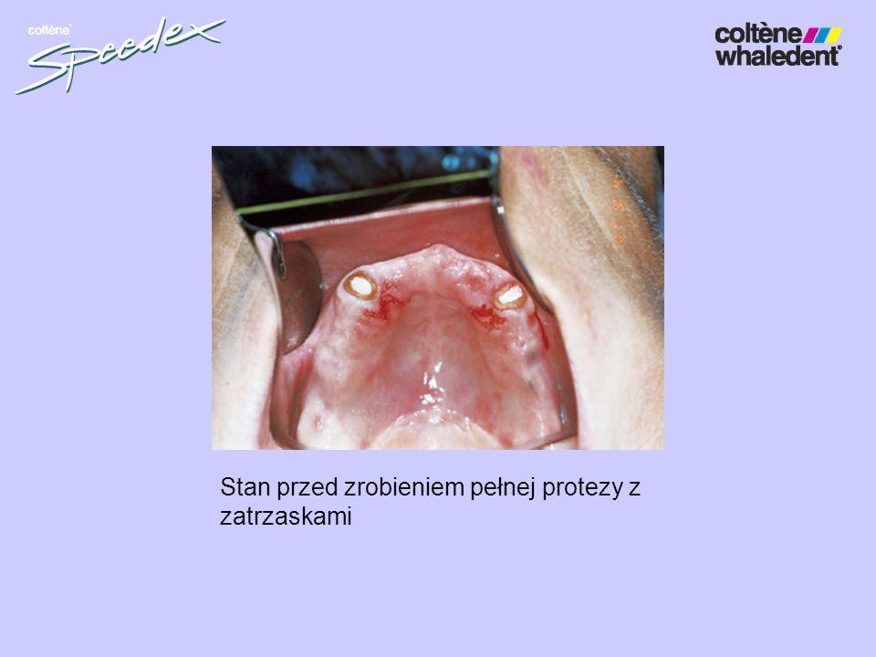 Stan przed zrobieniem pełnej protezy z zatrzaskami