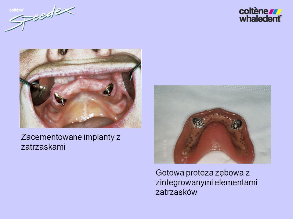 Zacementowane implanty z zatrzaskami