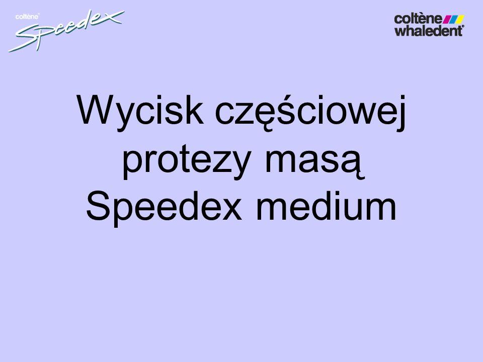 Wycisk częściowej protezy masą Speedex medium