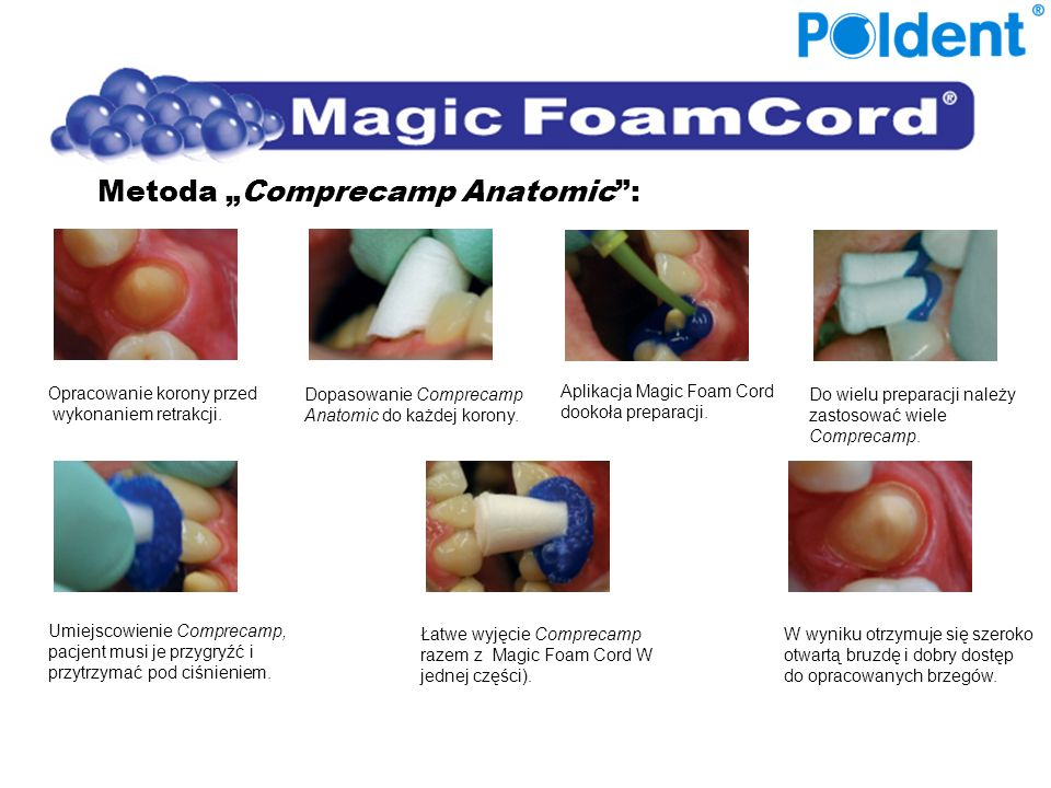"Metoda ""Comprecamp Anatomic :"