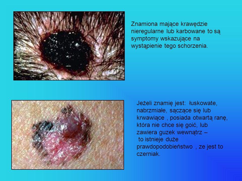 Znamiona mające krawędzie nieregularne lub karbowane to są symptomy wskazujące na wystąpienie tego schorzenia.
