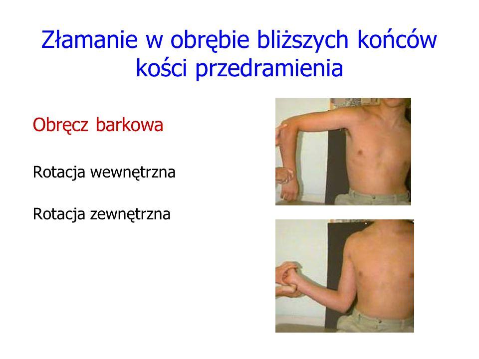 Złamanie w obrębie bliższych końców kości przedramienia
