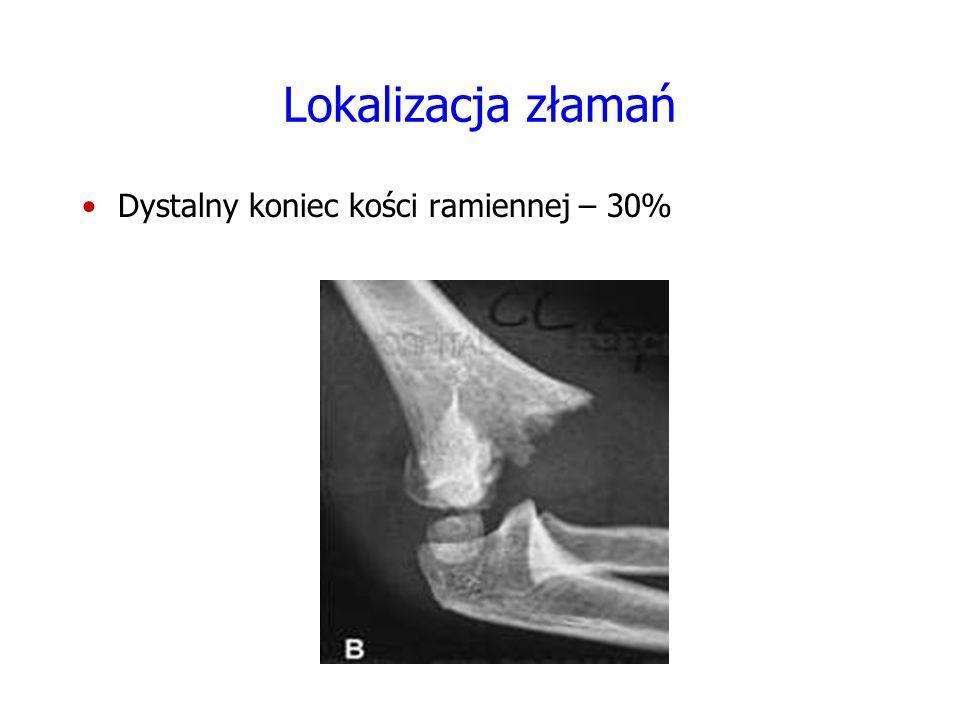 Lokalizacja złamań Dystalny koniec kości ramiennej – 30% FOTO