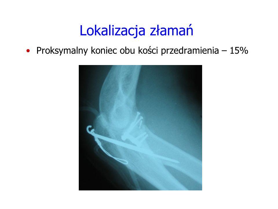 Lokalizacja złamań Proksymalny koniec obu kości przedramienia – 15%