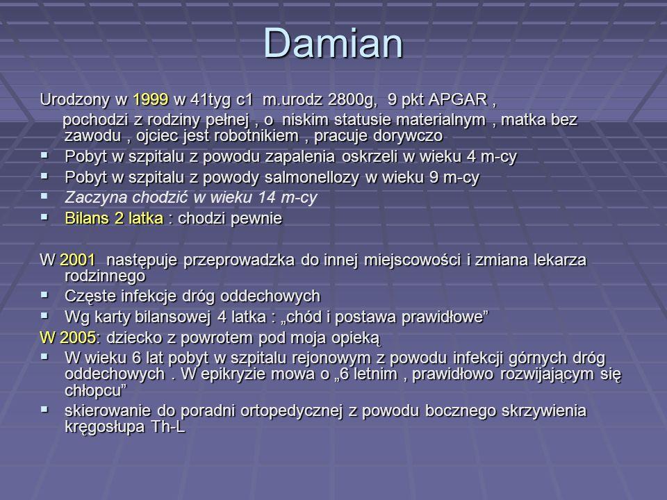 Damian Urodzony w 1999 w 41tyg c1 m.urodz 2800g, 9 pkt APGAR ,