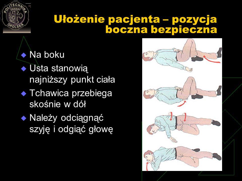 Ułożenie pacjenta – pozycja boczna bezpieczna