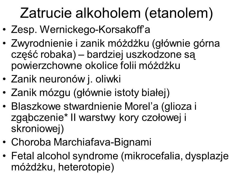 Zatrucie alkoholem (etanolem)
