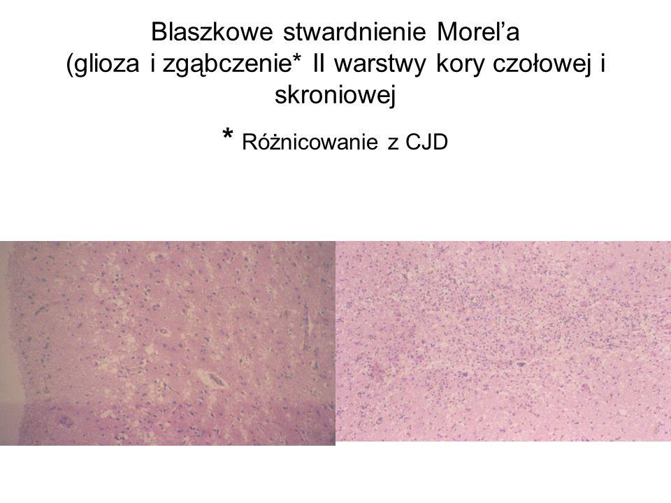 Blaszkowe stwardnienie Morel'a (glioza i zgąbczenie