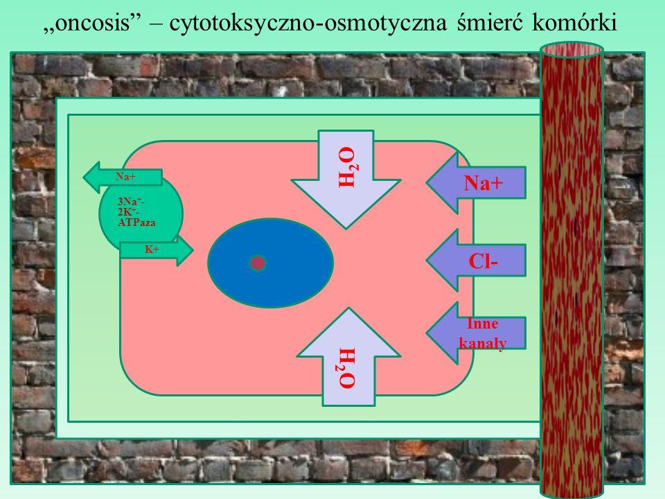 """""""oncosis – cytotoksyczno-osmotyczna śmierć komórki"""