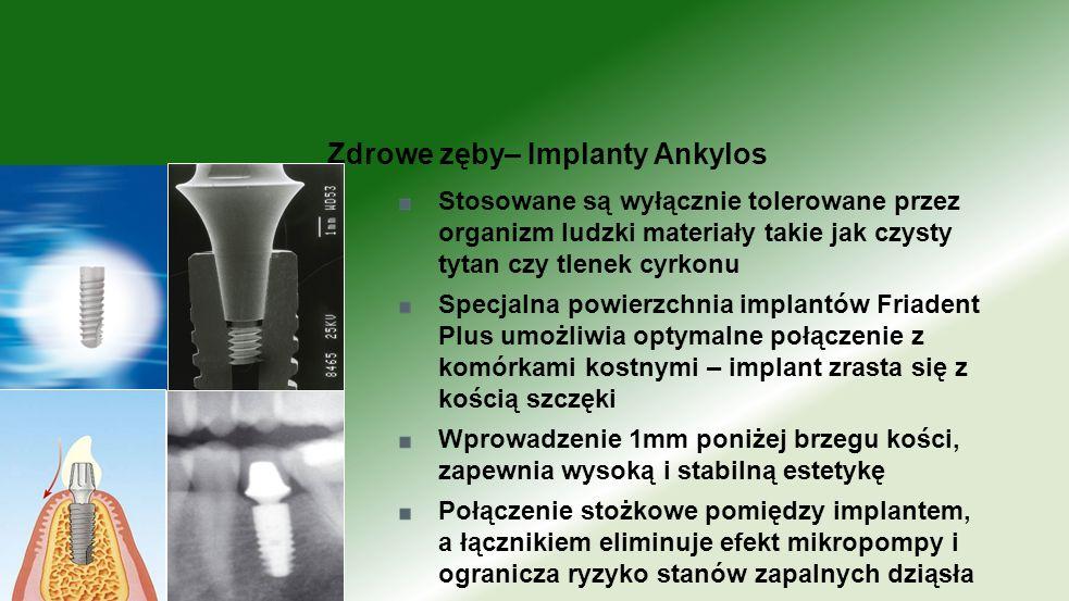 Zdrowe zęby– Implanty Ankylos