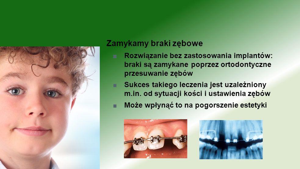 Zamykamy braki zębowe Rozwiązanie bez zastosowania implantów: braki są zamykane poprzez ortodontyczne przesuwanie zębów.