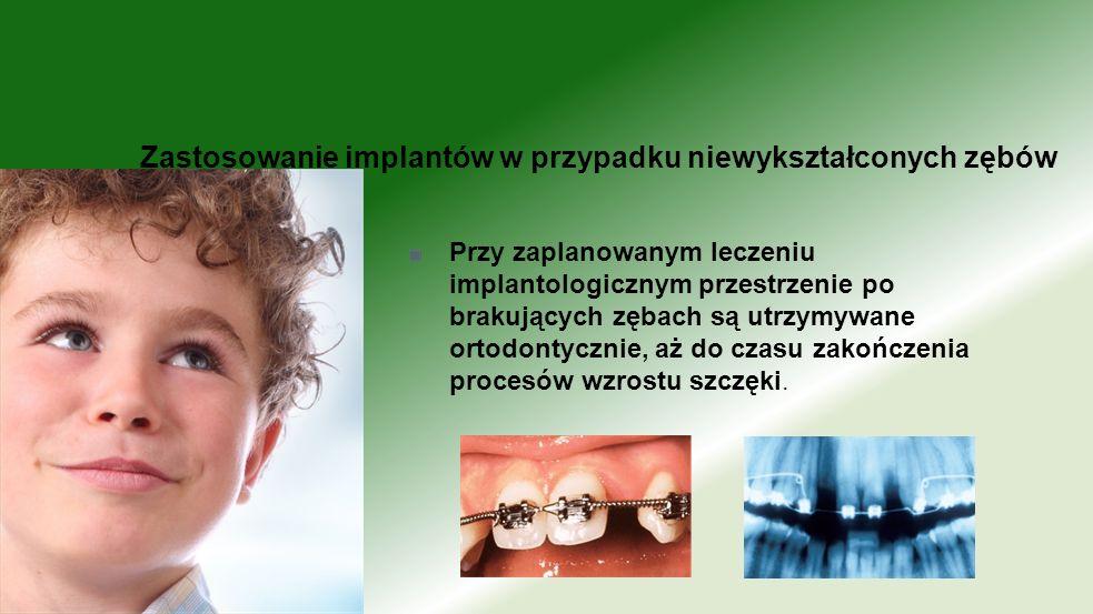 Zastosowanie implantów w przypadku niewykształconych zębów