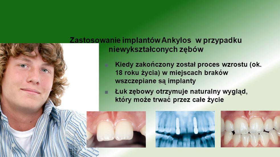 Zastosowanie implantów Ankylos w przypadku niewykształconych zębów