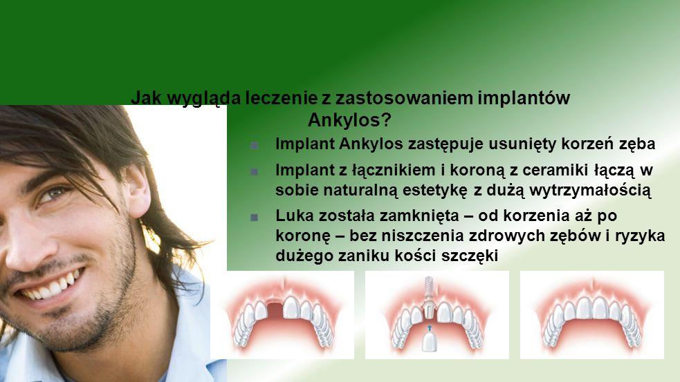 Jak wygląda leczenie z zastosowaniem implantów Ankylos