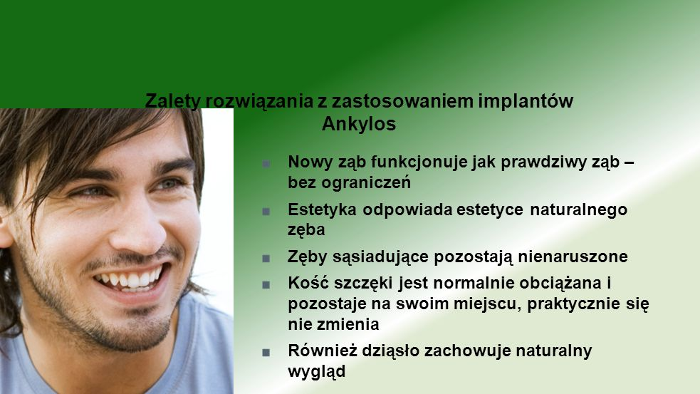 Zalety rozwiązania z zastosowaniem implantów Ankylos