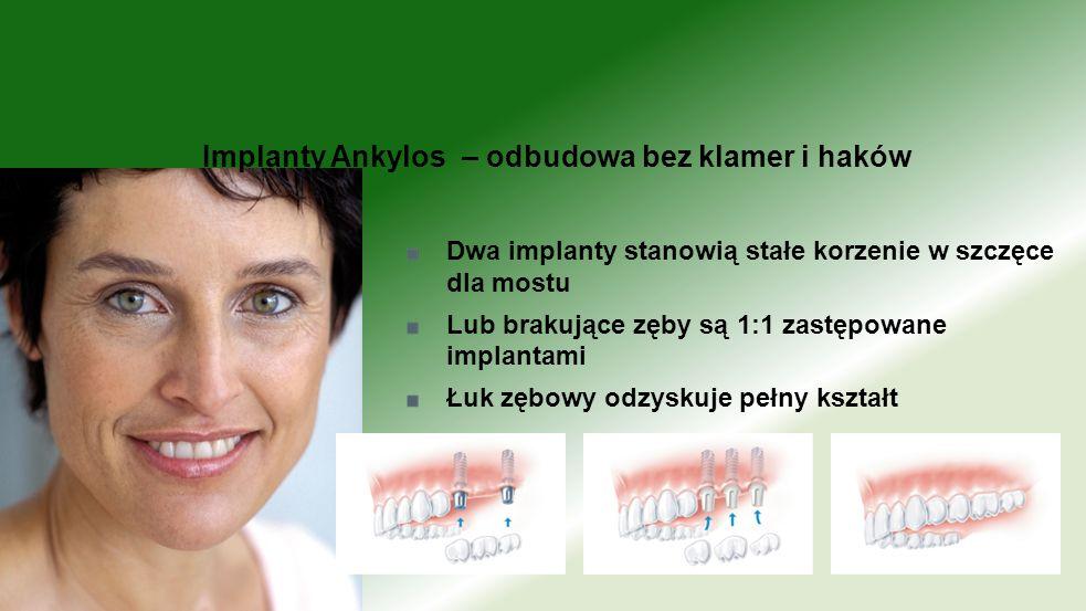 Implanty Ankylos – odbudowa bez klamer i haków